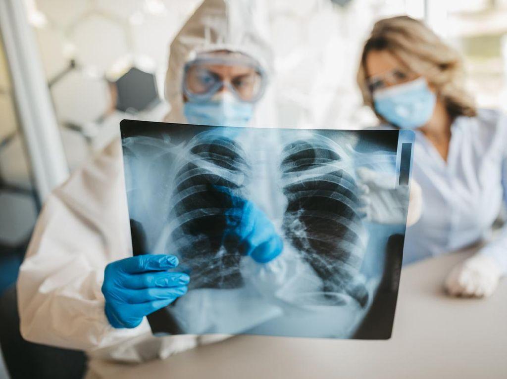 3 Cara Menjaga Kesehatan Paru-paru di Masa Pandemi COVID-19