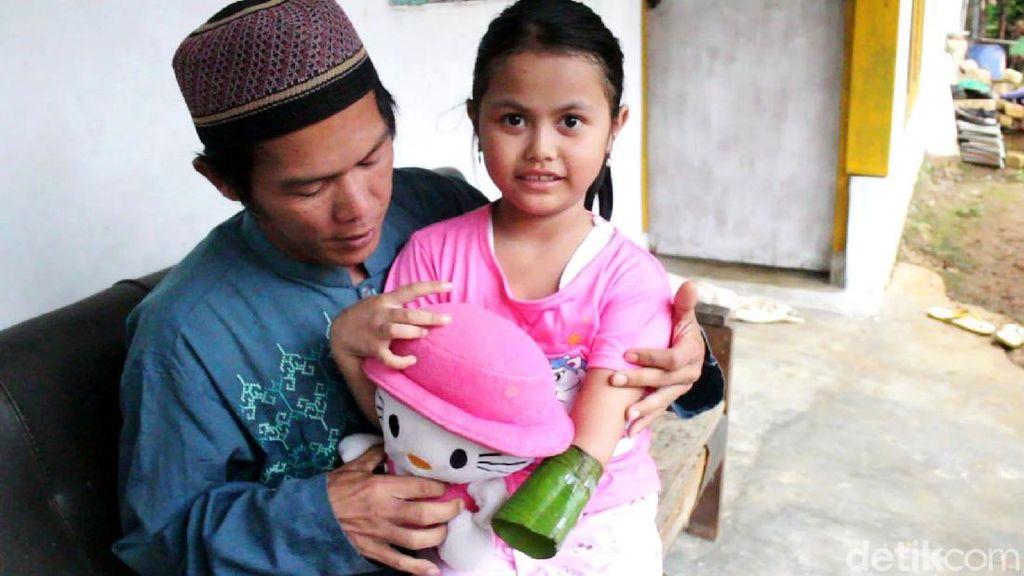 Anak Guru Ngaji di Sukabumi Ini Rela Menabung Demi Tangan Palsu