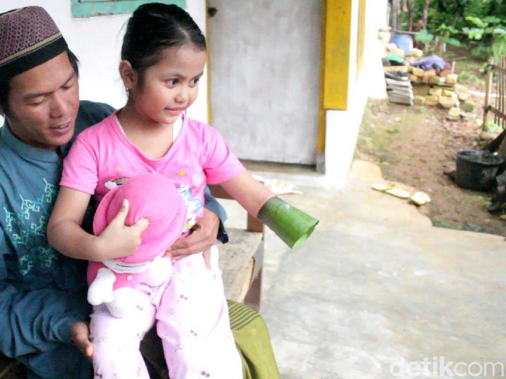 Anak Guru Ngaji di Sukabumi Ini Menabung Uang Jajannya Demi Tangan Palsu