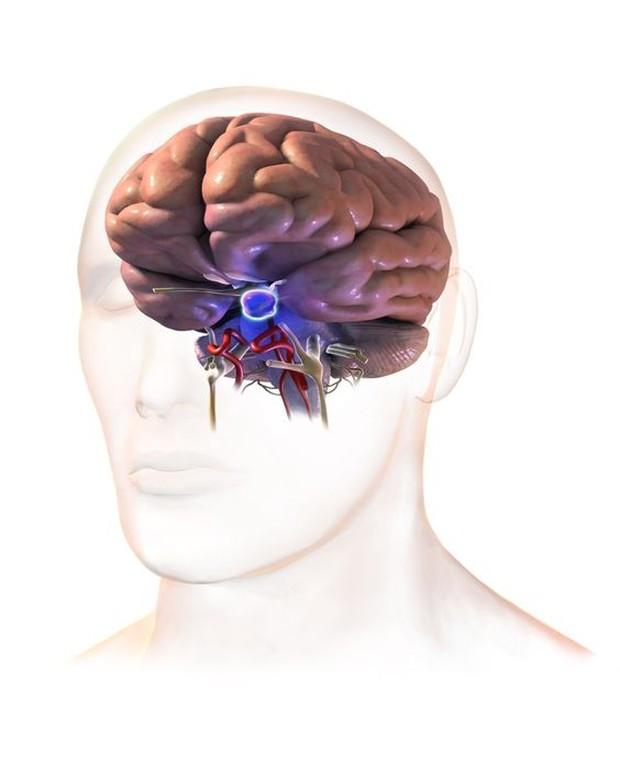 Hipotalamus dapat terganggu oleh trauma, tumor, bahkan pengobatan.