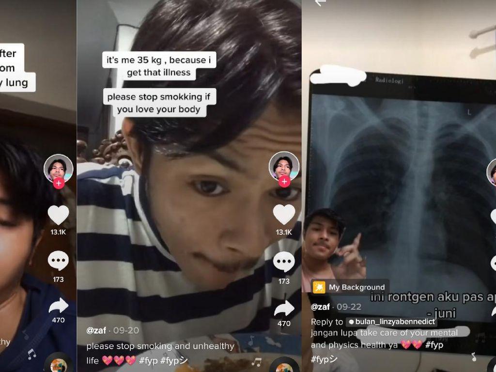 Kisah Viral Mantan Perokok, Berat Badan Turun 30 Kg karena Kena TBC