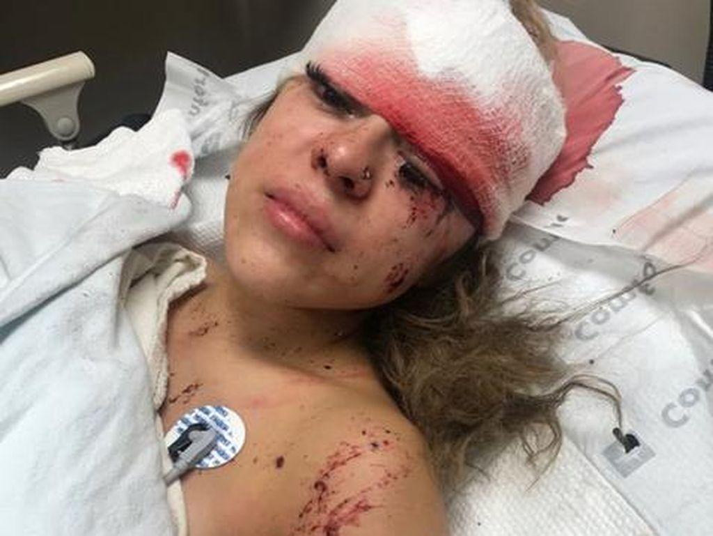Kecelakaan Sampai Berdarah-darah, Wanita Ini Malah Review Eyelash Extension