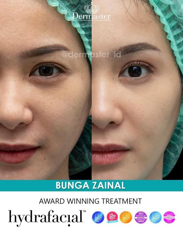 Bunga Zainal Dermaster Clinic/instagram.com/dermaster_id/