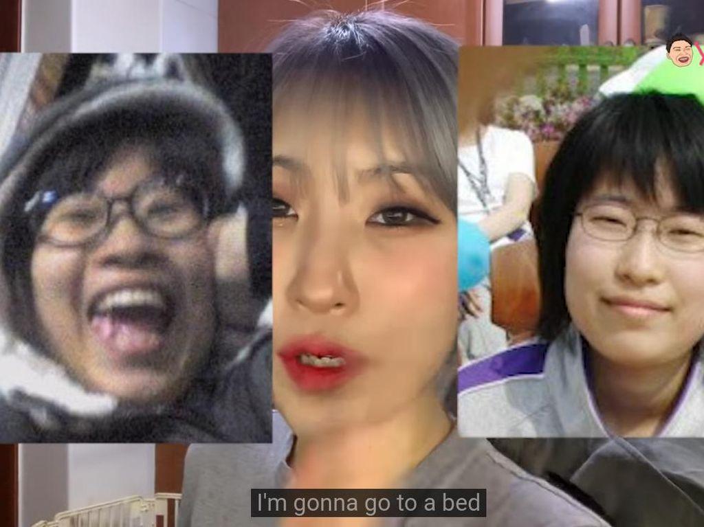 Transformasi Pemain Reply 1988 yang Oplas karena Dihujat Netizen