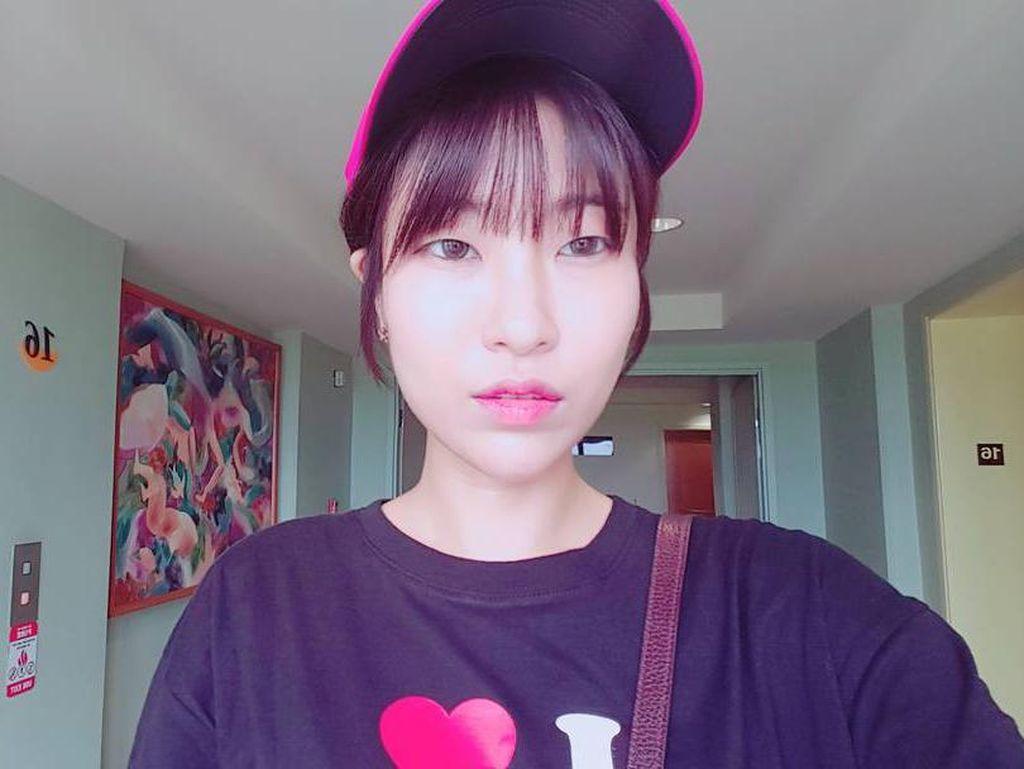 Sering Di-bully karena Penampilan, Artis Korea Ini Akhirnya Jalani Oplas