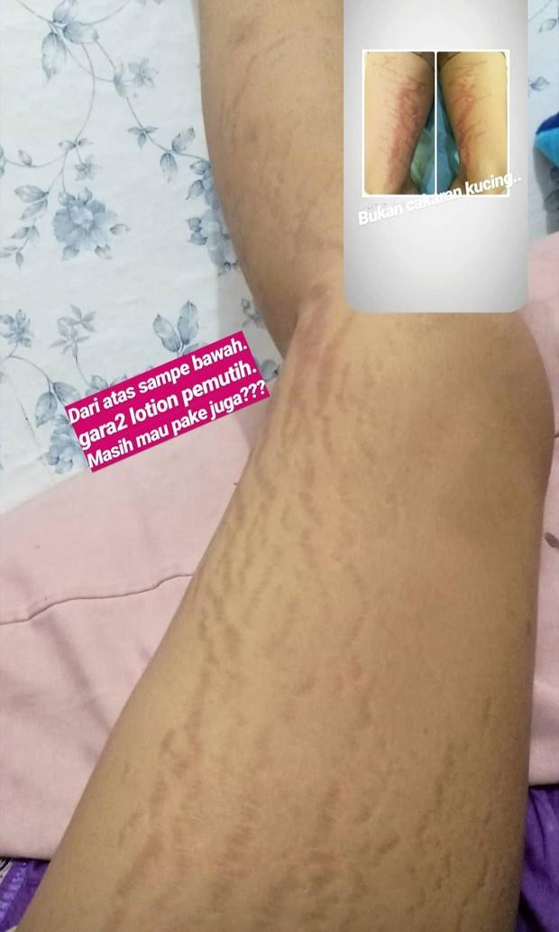 Efek penggunaan lotion pemutih bersteroid