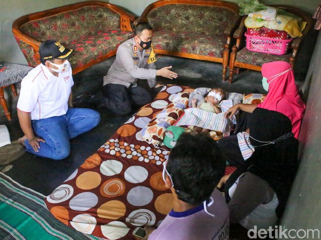 Saat Polisi Jenguk Bayi Penderita Hidrosefalus di Jombang