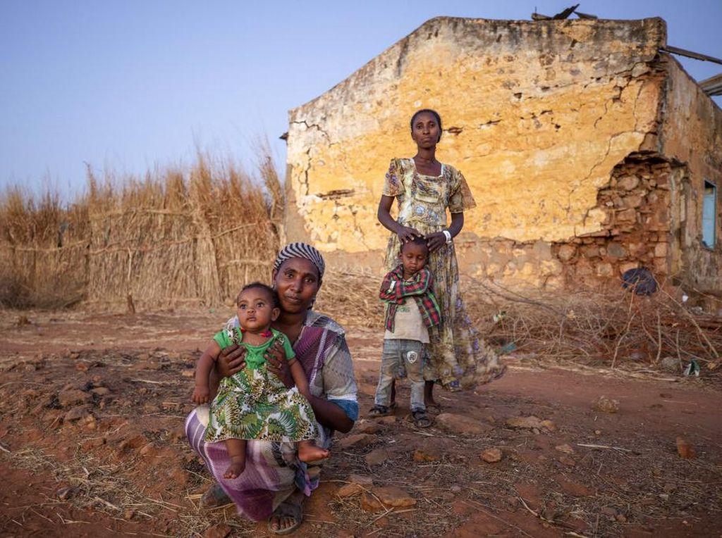 Pengungsi Ethiopia Bertahan Hidup di Tengah Keterbatasan Obat-obatan