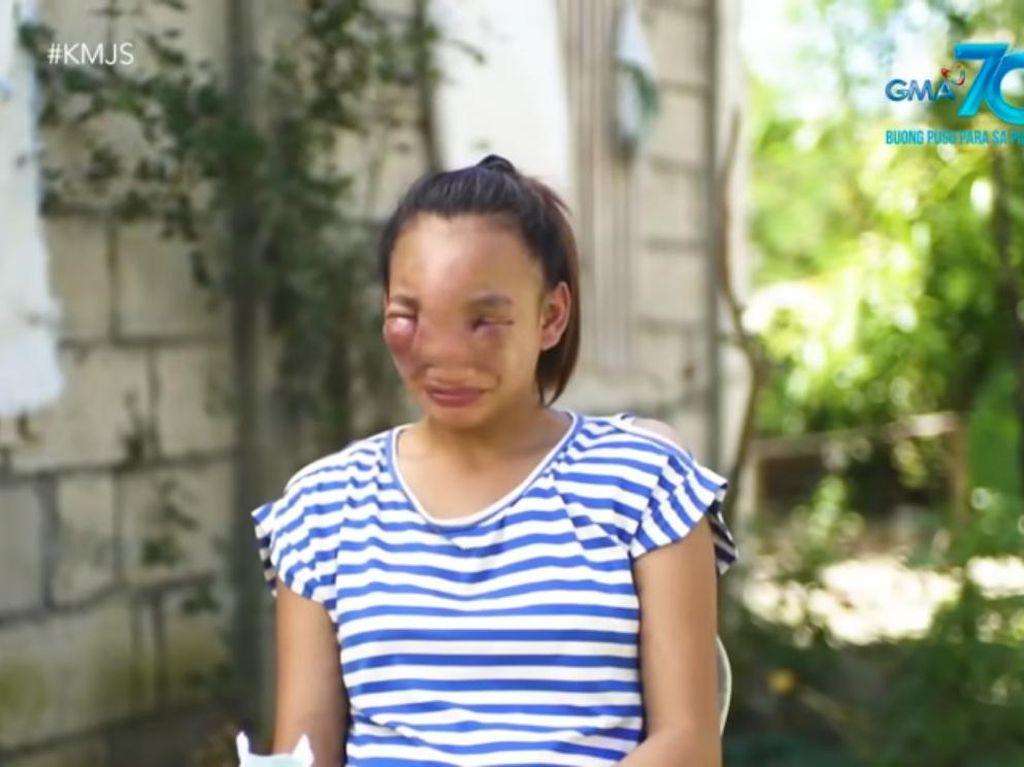 Kisah Remaja Menderita karena Pencet Jerawat, Wajah Bengkak & Susah Melihat
