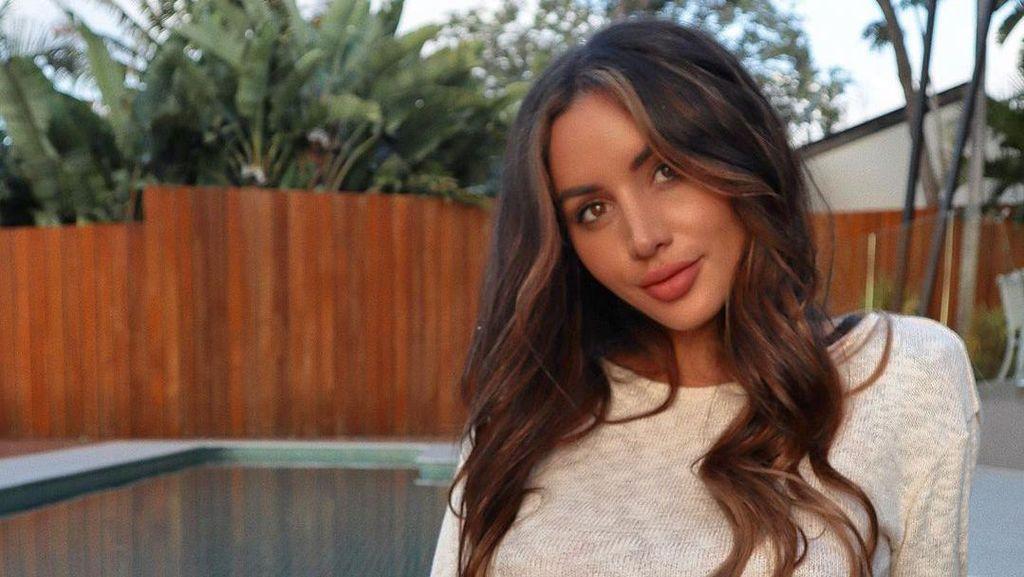 Foto: Si Cantik Bintang Reality Show Vanessa Sierra, Dulunya Gelandangan
