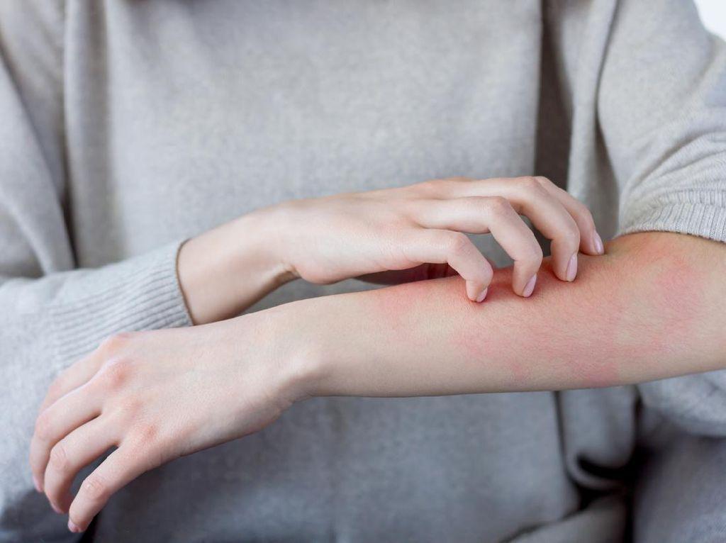 3 Gejala COVID-19 pada Kulit yang Kerap Tak Disadari Saat Terinfeksi