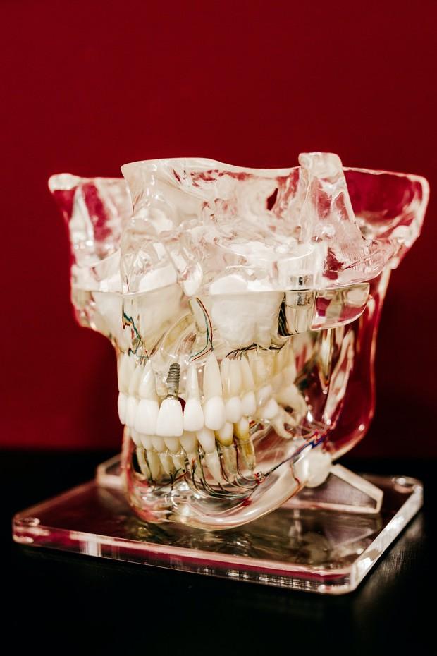 memainkan gigi