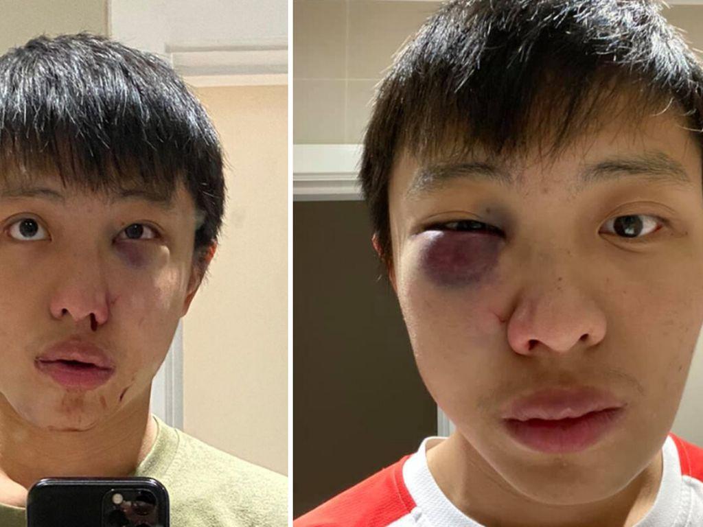 Pelaku Serangan Rasis Atas Mahasiswa Singapura Divonis Bersalah
