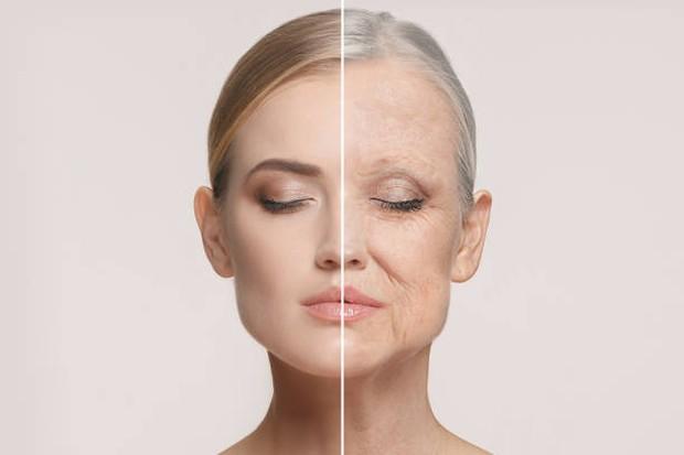 Penuaan dini dapat terjadi karena kurang tidur atau kebiasaan begadang / foto: istockphoto.com