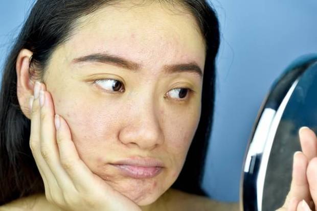 Menggunakan produk yang tidak cocok dapat membuat kulit wajah terlihat kusam / foto: istockphoto.com
