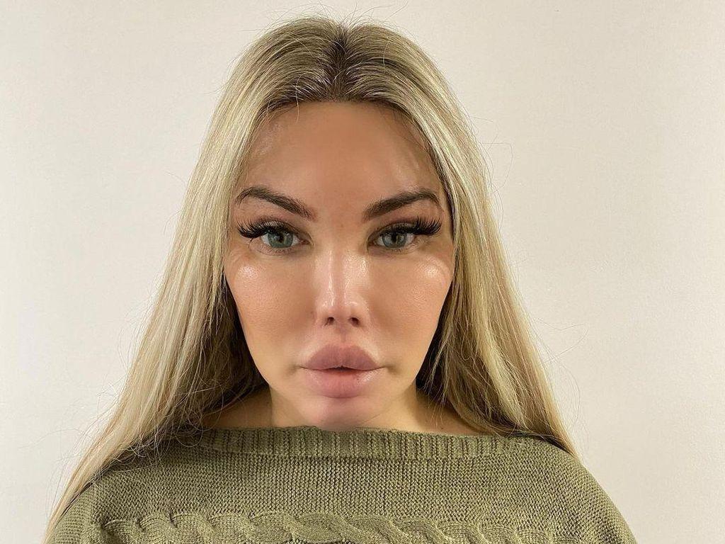 Penampilan Terbaru Transgender yang Dulunya Terobsesi Jadi Boneka Ken