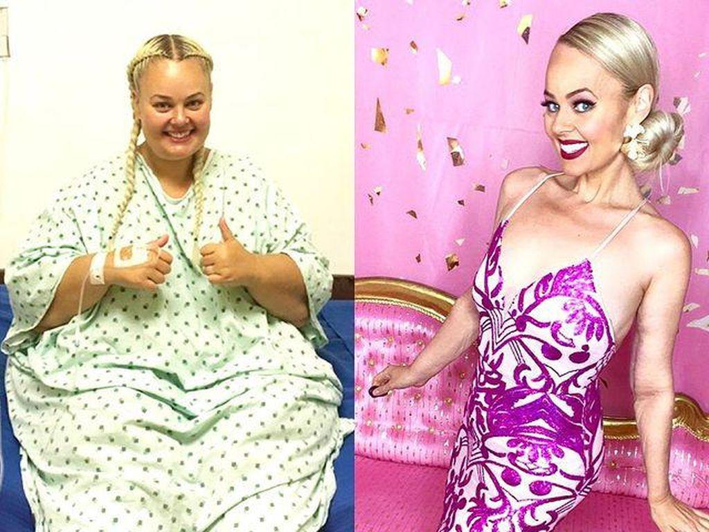 8 Potret Perubahan Drastis Wanita Turun BB 90 Kg, Terinspirasi Boneka Barbie