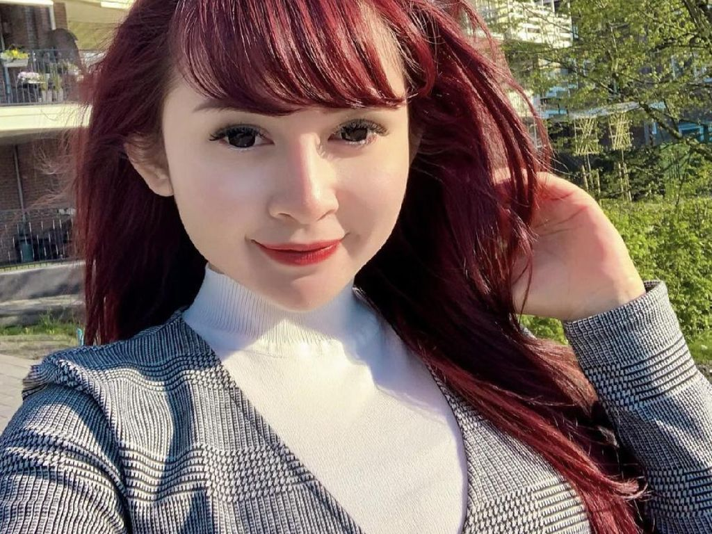 Dituding Operasi Payudara dan Hidung, Winny Putri Lubis: Aku Cantik dari Lahir!