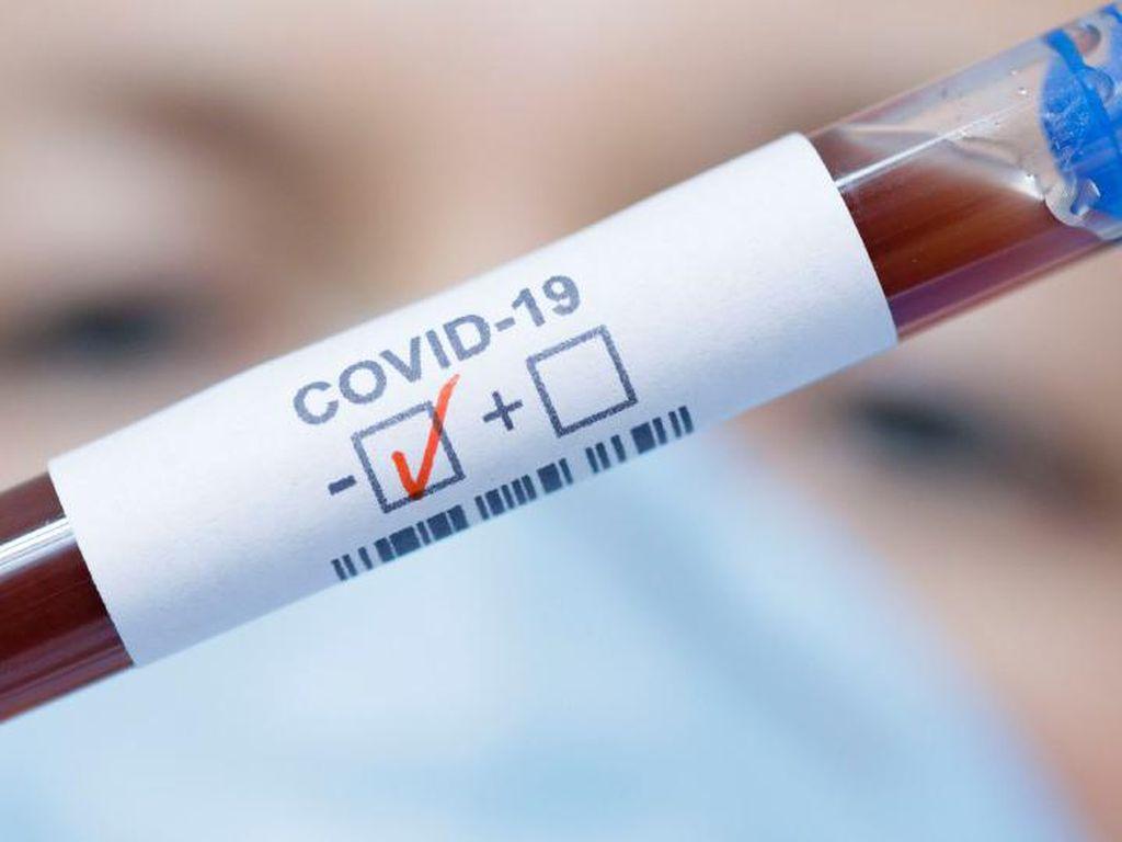 Viral Obat Cina COVID-19 Lianhua Qingwen Dilarang Beredar, Ini Penegasan BPOM