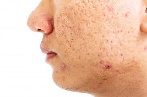 Memberikan kesan cekungan kecil atau permukaan di wajah.