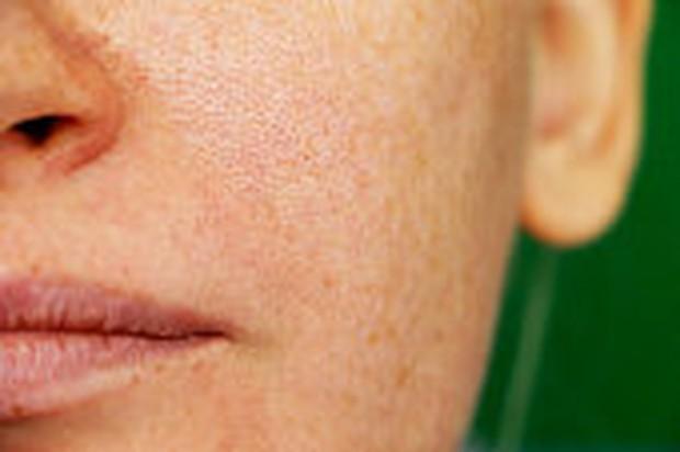 kulit kotor karena sisa minyak dan face washFoto:google/freeimages