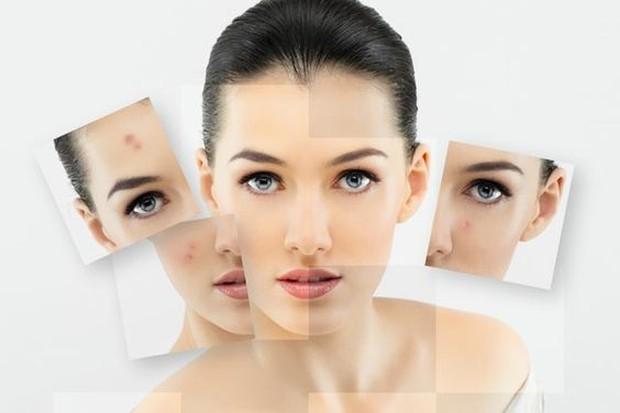 Permasalahan kulit wajah Foto:pinterest/womenonlinemagz
