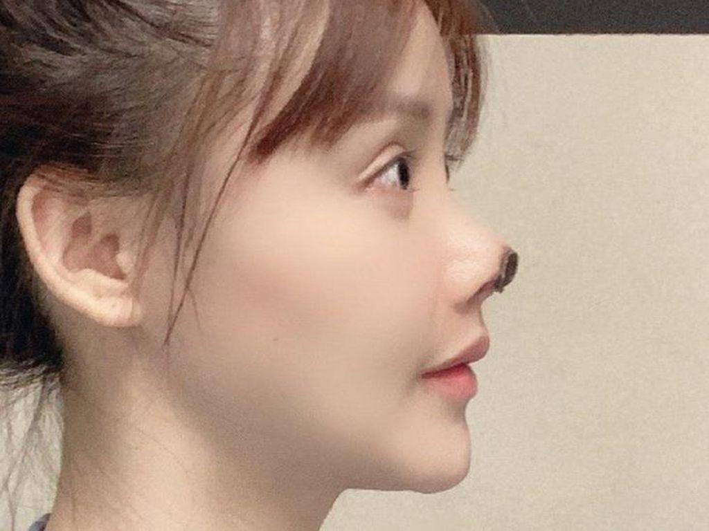 Hidung Aktris Cantik Ini Menghitam karena Operasi Plastik Abal-abal