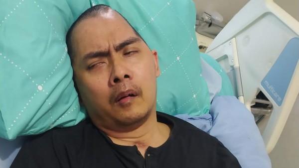 Mantan Kasat Reskrim Polres Wonogiri, Kompol Aditia Mulya jadi korban pengeroyokan saat melerai perkelahian 2 kelompok silat