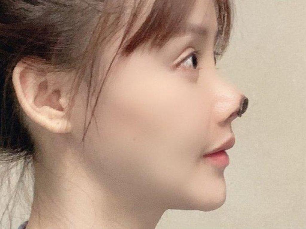 Cerita Aktris China yang Ujung Hidungnya Menghitam Usai Bedah Kosmetik