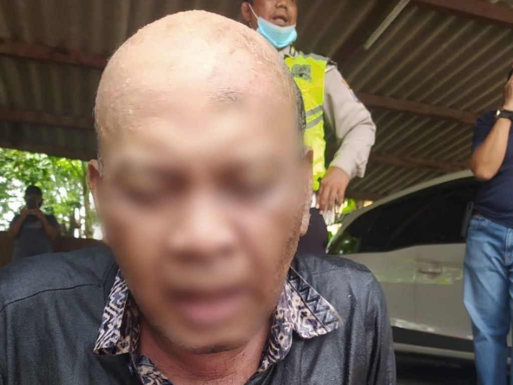 Ketakutan Sendiri, Pria di Surabaya Siram Bensin dan Bakar Pengendara Motor