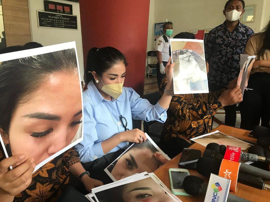 Hadir di Sidang Cerai Nindy, Ibunda Ungkap Lebam di Tubuh Sang Anak