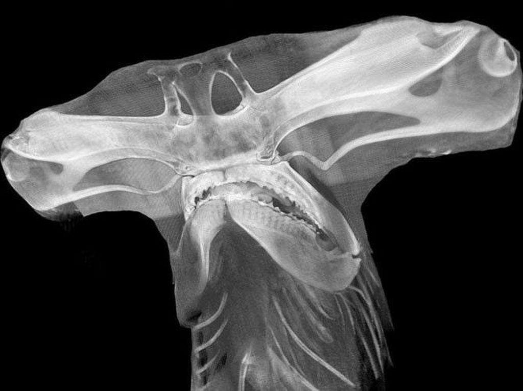 Deretan Foto X-Ray yang Mungkin Belum Pernah Kamu Lihat