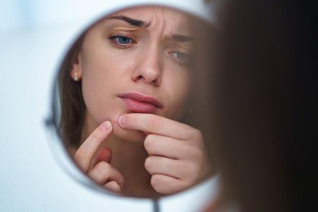 jerawat merupakan salah satu tanda bahwa skin barrier mu sudah rusak.