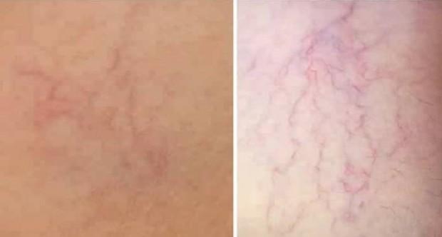 Kulit rusak akibat pemakaian hidrokuinon dan merkuriFoto:instagram/barnezt_nabilalhasya