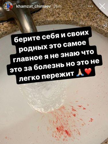 Khamzat Chimaev batuk darah.