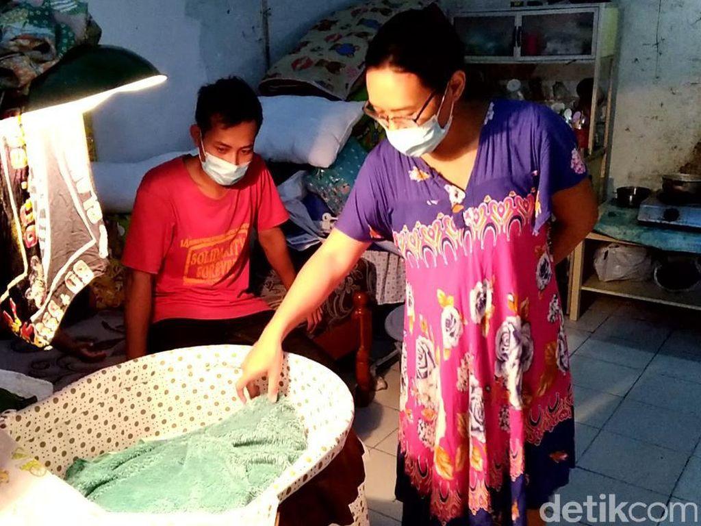 Pemkot Solo Janji Bayi Tanpa Tempurung Kepala Dapat Perawatan
