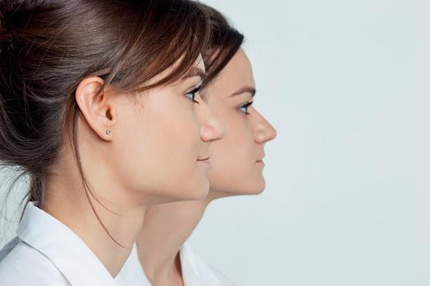Meskipun terdapat faktor genetik, persalinan anak kembar juga dimungkinkan terjadi akibat beberapa faktor.