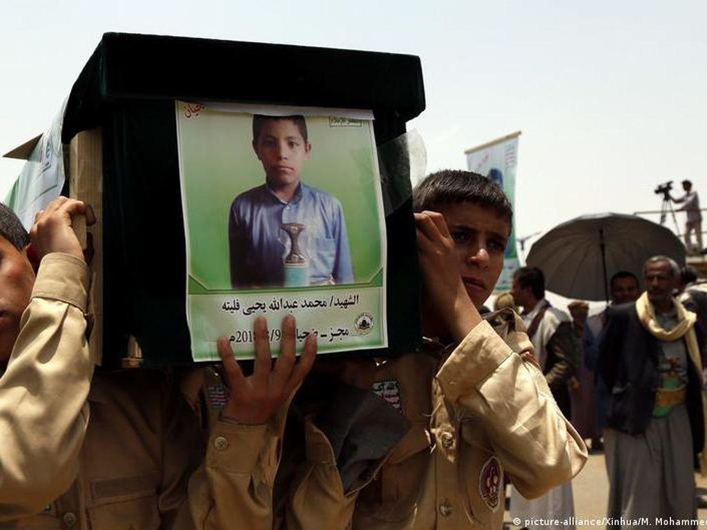 Melihat Lebih Dekat Anak-anak Korban Perang di Yaman