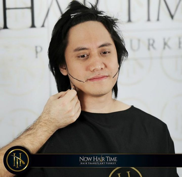 Cangkok Rambut yang Dilakukan Kevin Aprilio