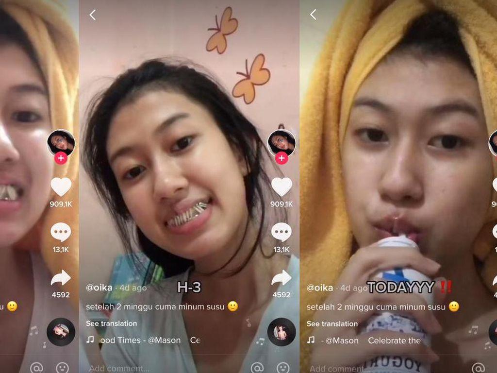 Cerita Remaja dengan Gigi Dikunci, 2 Minggu Cuma Minum Susu dan Obat Maag