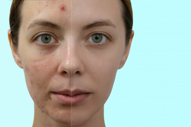 Jangan Dulu Ganti Skincaremu. Bahan Aktif Juga Butuh Waktu Untuk Bekerja/freepik.com
