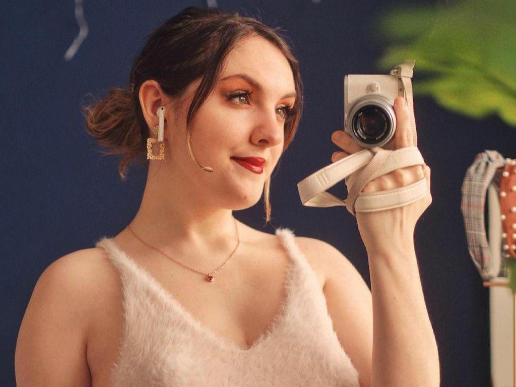10 Potret Wanita yang Hanya Memiliki Satu Payudara karena Kondisi Langka