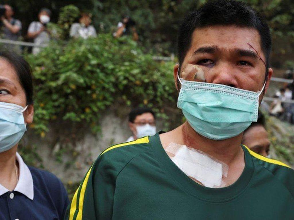 Kisah Memilukan Para Korban yang Selamat dari Kecelakaan Kereta Taiwan
