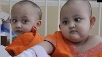 RSAB Harapan Kita Pisahkan Kembar Siam Dempet Tulang Ekor Naifa-Nayyara