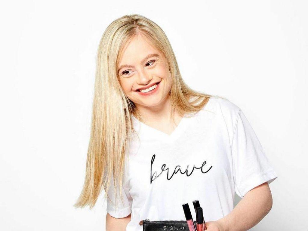 10 Potret Model Down Syndrome yang Terobsesi Tampil di Majalah Pria Dewasa