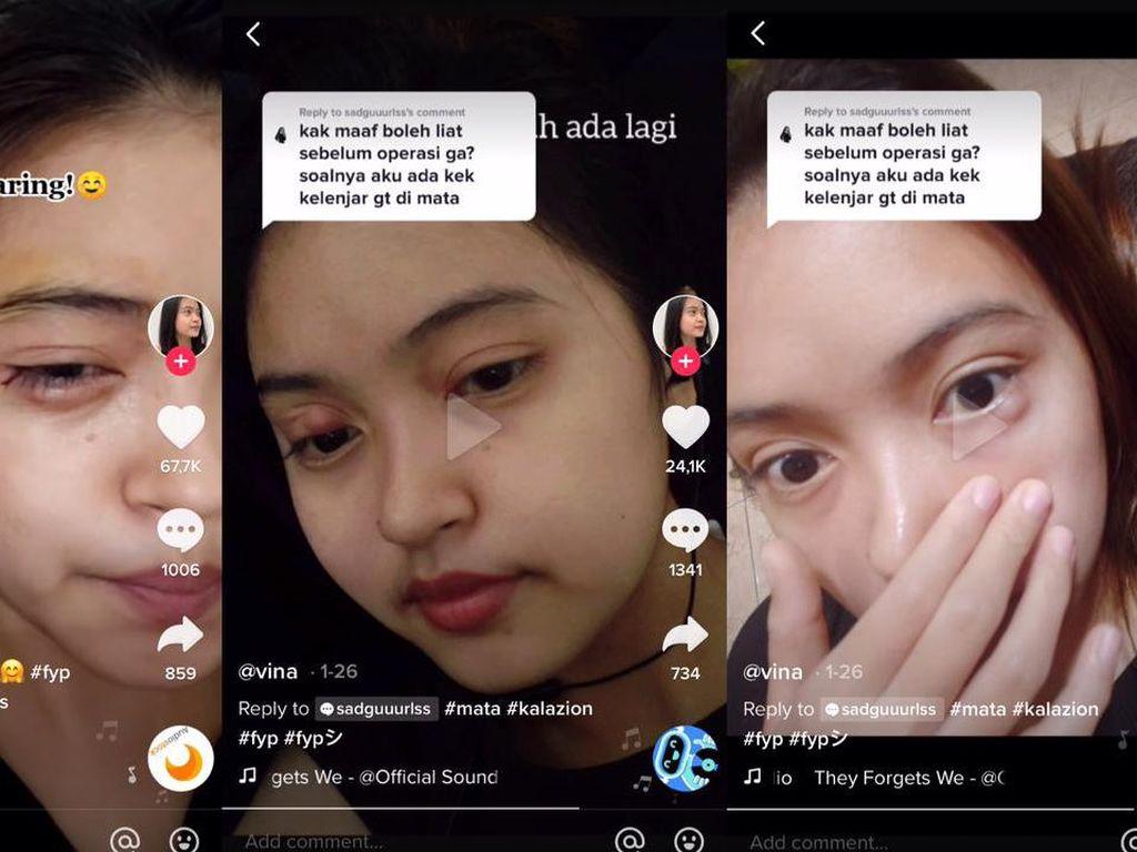 Viral Kista di Mata Disangka Bintitan, Tak Tahunya Kalazion dan Harus Operasi