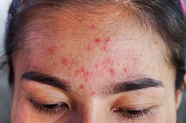 Skin Barrier Rusak