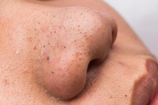 Ilustrasi komedo di hidung/startikel.com