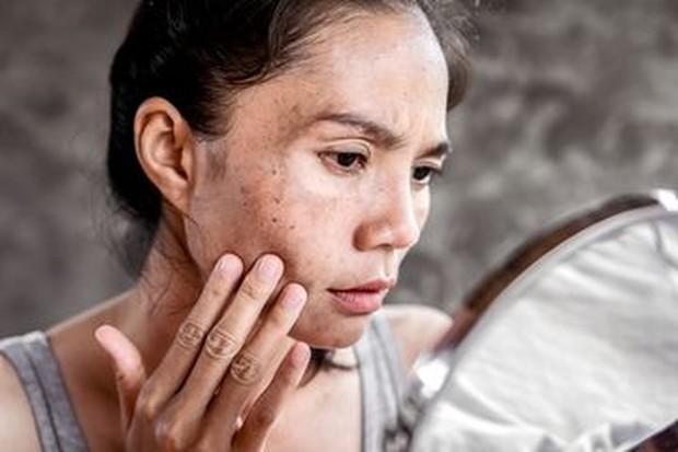 foto: Warna Kulit Menjadi Lebih Gelap/freepik.com