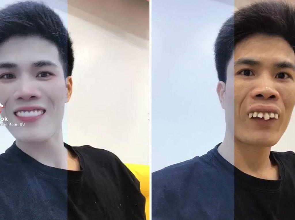 Foto: 8 Transformasi Kocak Pengguna Half Filter yang Viral di TikTok